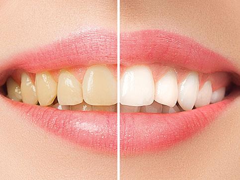 teeth-whitening-cosmetic